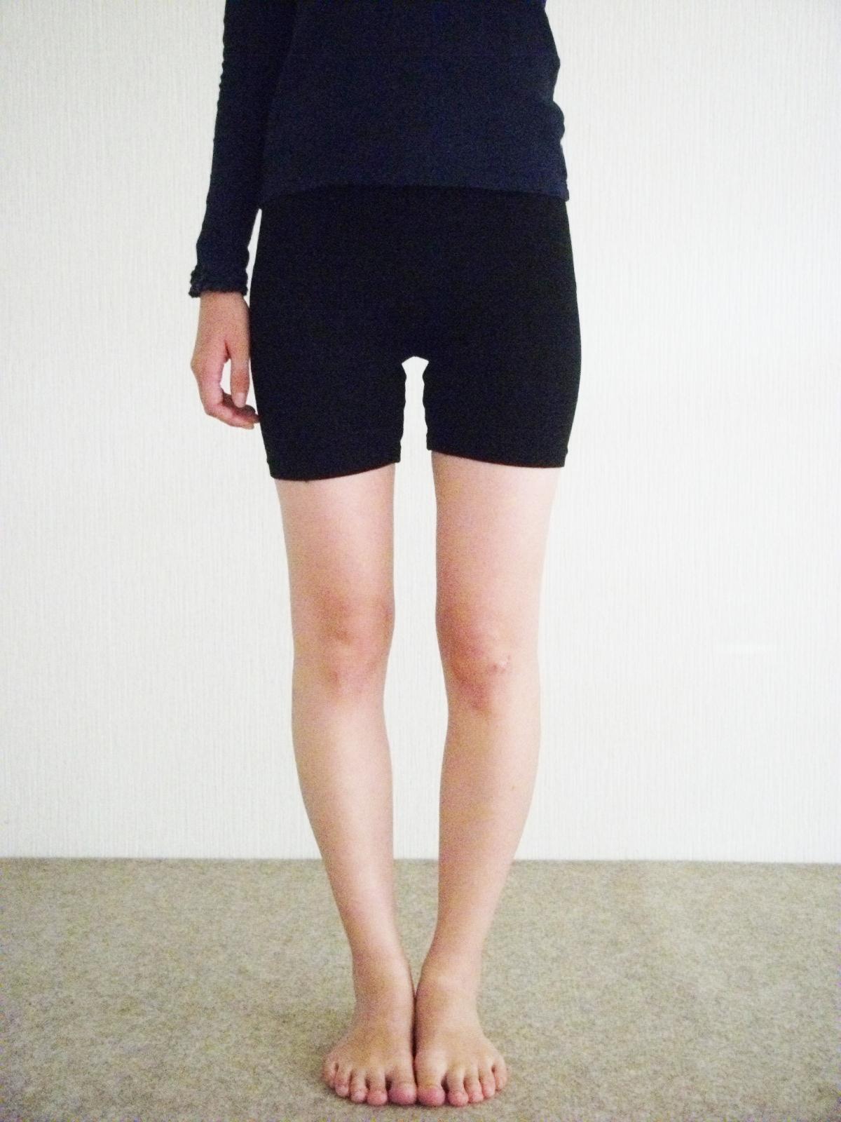 女性のO脚