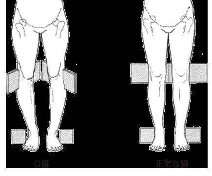 O脚のメカニズム「内ねじれO脚」