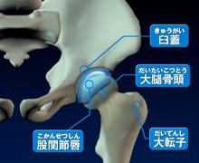 股関節の軟骨がすり減る図