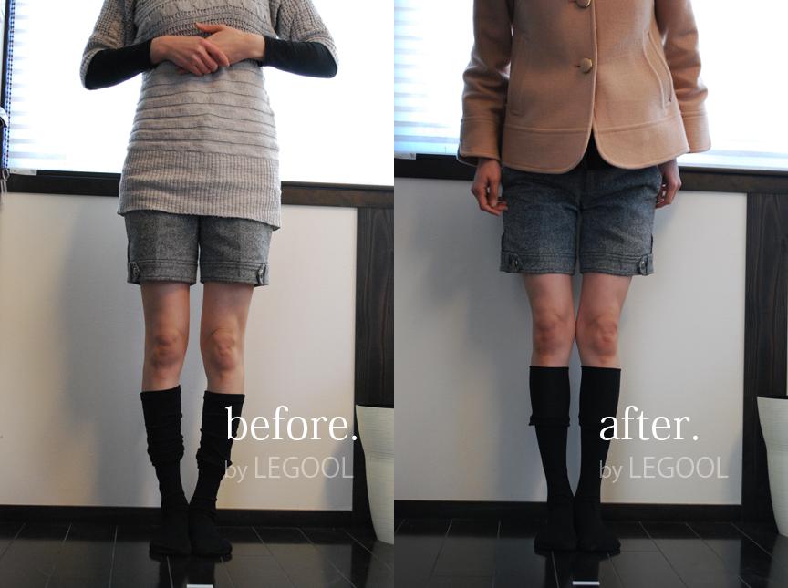 レグールを使ったO脚矯正のビフォーアフター公開!骨盤底筋をねじる方法が最適!
